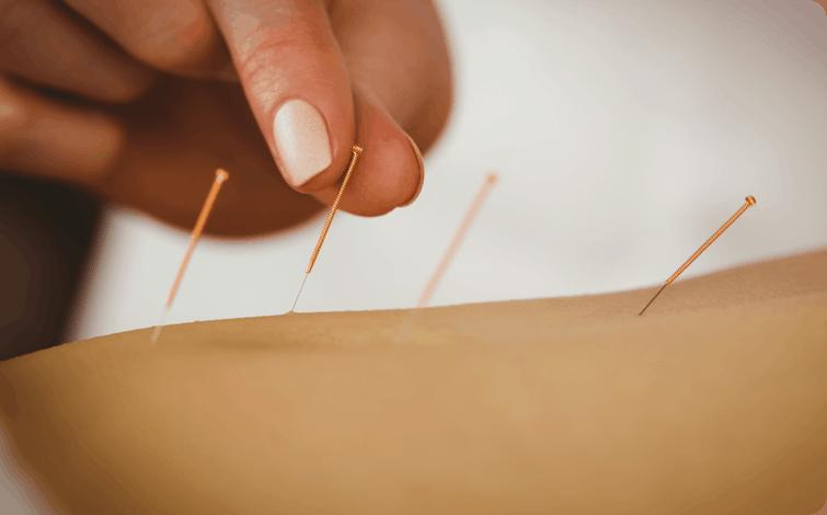 Acupuncture at Schauder Chiropractic & Wellness in Orlando, FL